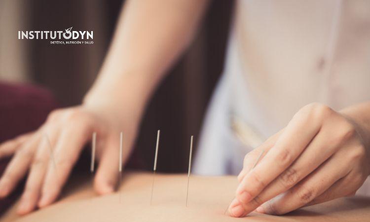 Descubre si la acupuntura para adelgazar es o no efectiva, y cuáles son sus pros y sus contras