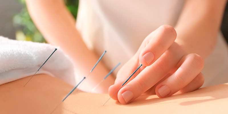 Estudiar acupuntura para formarte en terapias naturales.