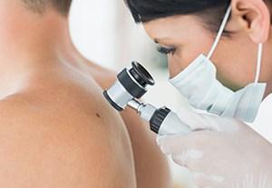 estudiar-alteraciones-piel