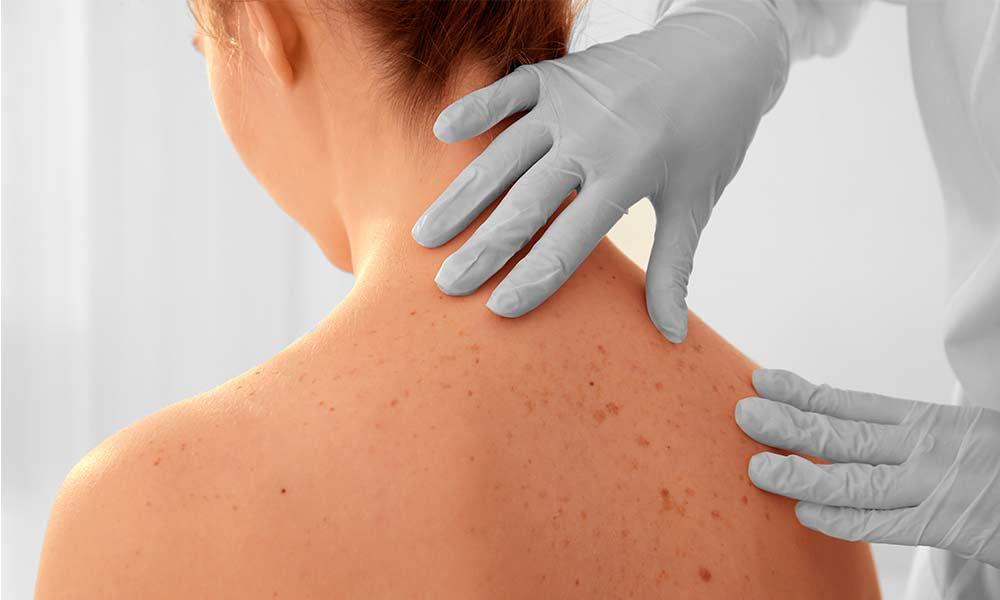 Conoce los diferentes tipos de manchas en la piel