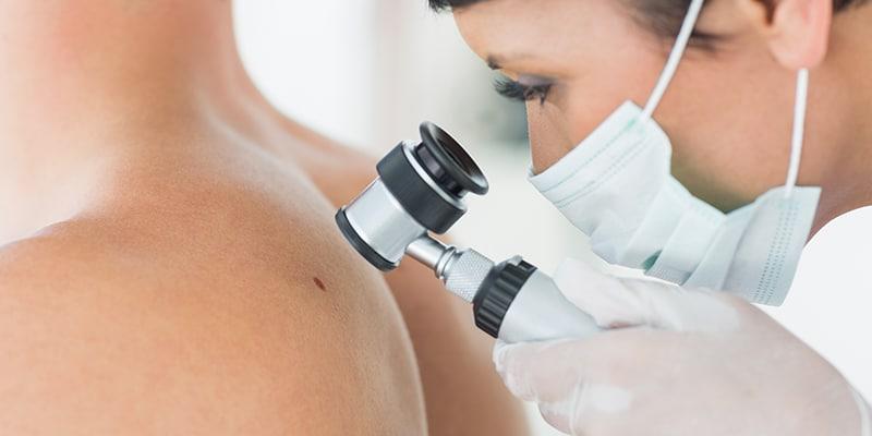 curso de patologías de la piel